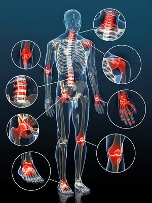 Gelenkentzndungen bei Arthrose