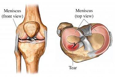 meniscus-tear