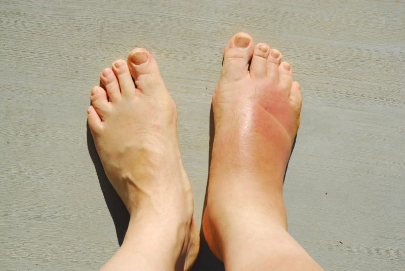Inflammation and Swelling
