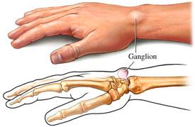 ganglion-cyst