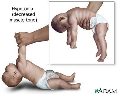 hypotonia
